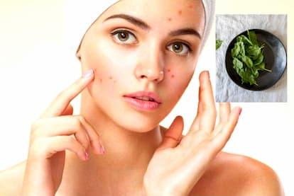 Anti-acne diet