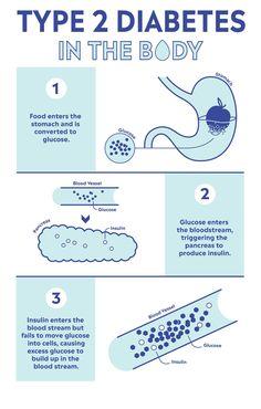 Types of diabetes diagnosis prognosis treatment