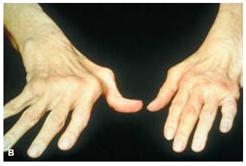 Rheumatoid arthritis. (B) Advanced.