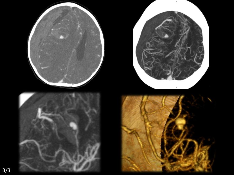 Ruptured pseudoaneurysm