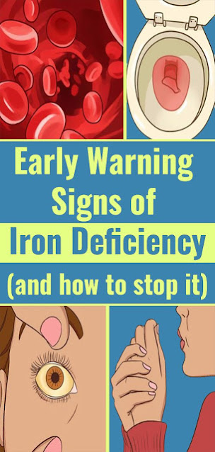 Iron Deficiency Symptoms That You Shouldn't Ignore