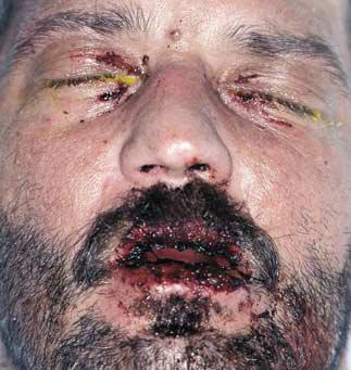 Healthy Ranula Common Vesiculobullous Diseases Etiology