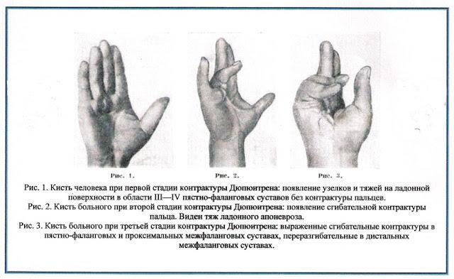 Контрактура Дюпюитрена (ладонный фиброматоз)