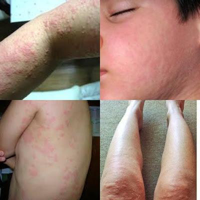 Obat Alergi, Cara Menyembuhkan Alergi Kulit Menahun Secara Efektif Dan Cepat