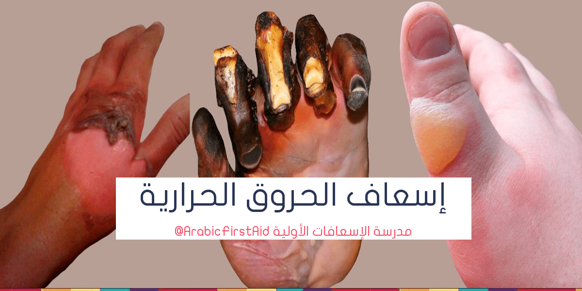 thermal-heat-or-fire-burns-treatment-حروق