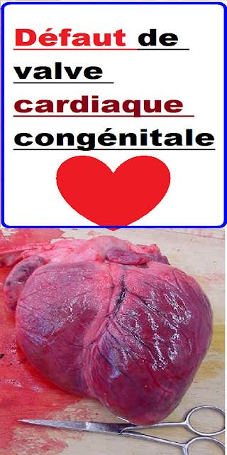 Défaut de valve cardiaque congénitale