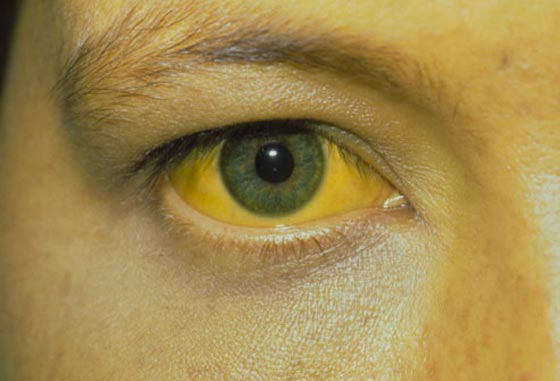 الحمى الصفراء تقتل 60 شخصا في البرازيل