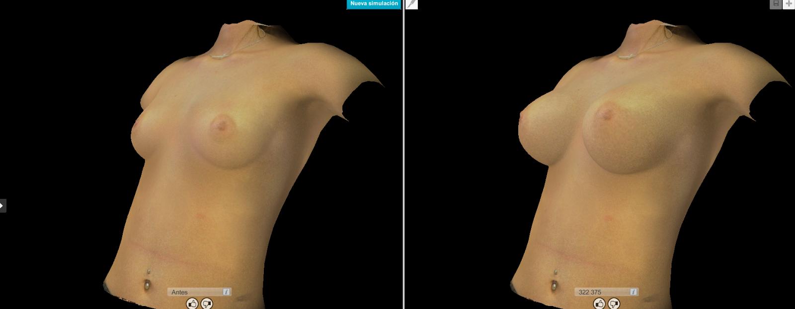 Simulación 3D (Crisalix Virtual Aesthetics).