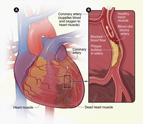 Heart Palpitations After Eating Sugar Or Chocolate