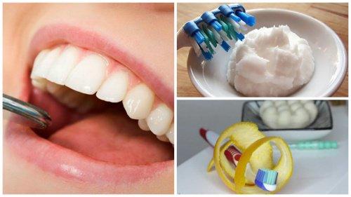 6 astuces maison pour 233 liminer le tartre accumul 233 sur les dents la beaut 233 naturelle