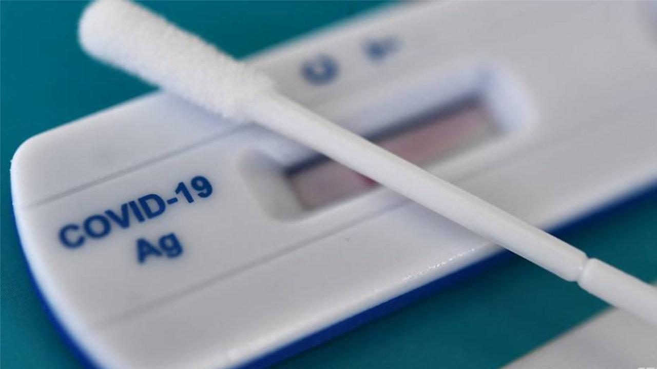 5 Kit Ujian Kendiri COVID-19 Yang Dibenarkan Oleh KKM Untuk Dijual
