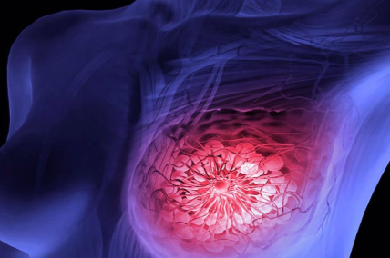 5 #Most Common Signs Of Breast Cancer That Generally Women Ignore#Health