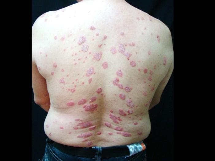 典型乾癬病灶 帶有白色麟狀皮屑的紅色板塊