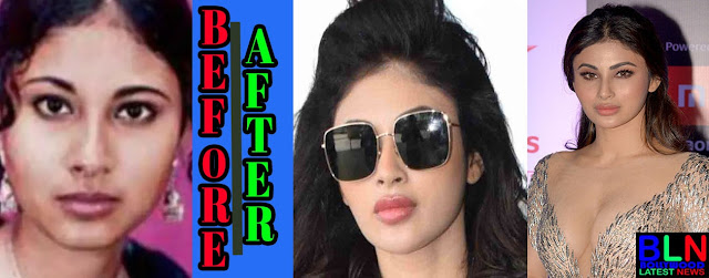 MOUNI ROY Bollywood Actresses Before and After Plastic Surgery