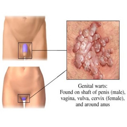 Vaginal Pain With Sex