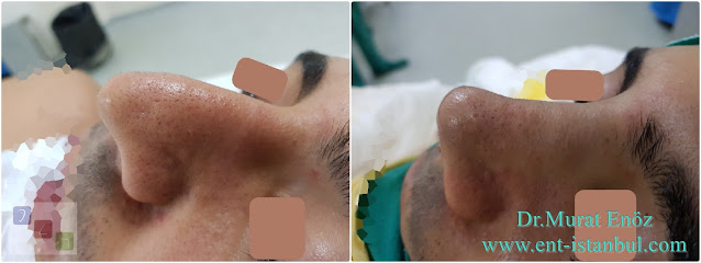Male Nose Aesthetic Surgery,Men's Rhinoplasty in Istanbul,Rhinoplasty in Men Istanbul,Nose Job Surgery For Men in Istanbul,Male Nose Operation in Turkey,