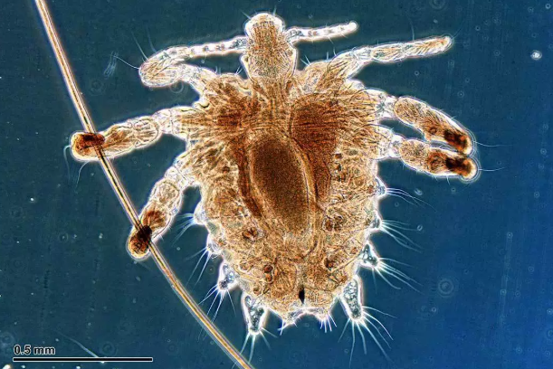 All You Need to Know About Sexually Transmitted Diseases (STDs) #Pubic Lice