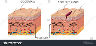 What is stretch marks