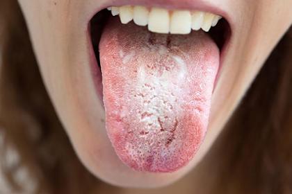 Cara Mengetahui Kondisi Kesehatan Melalui Warna, Tekstur dan Lapisan Lidah
