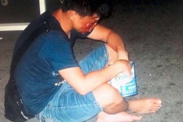 Xiu Yuan (33) mengaku lahir sebagai anak yang sehat. Ia kemudian diculik dan dibuat cacat oleh geng-geng kriminal di Cina.