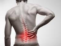 Kenali Pemicu dan Cara Mengobati Sakit Pinggang Sebelah Kiri