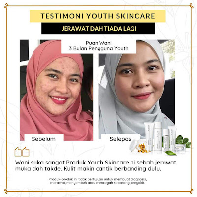 Testimoni Youth Skincare Untuk Jerawat
