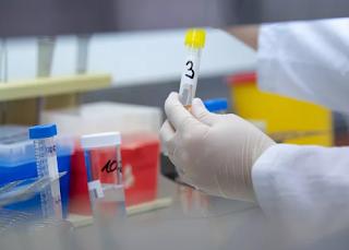 ستبدأ مختبرات الولايات المتحدة في البحث عن فيروس كورونا الجديد هذا الأسبوع