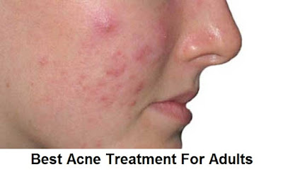 Acne is more common in adults than is often thought Causes And Treatment Of Acne In Adults