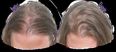 Dream Shampoo - Lola Cosmetics - Resultado (Antes e Depois)