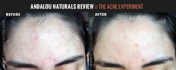 Andalou Naturals Vitamin C Toner Before & After :: The Acne Experiment