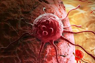 Kenali.!! 6 Jenis-Jenis Kanker Dan Penyebabnya