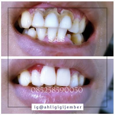 Foto hasil perbaikan gigi depan keropoa hitam berlubang sas ahli gigi jember pati