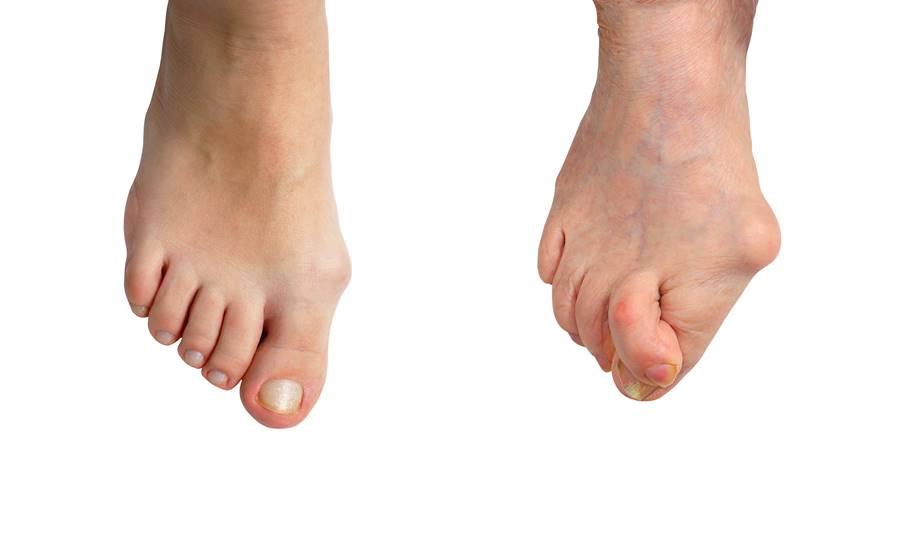 ¿Problemas en dedos del pie?