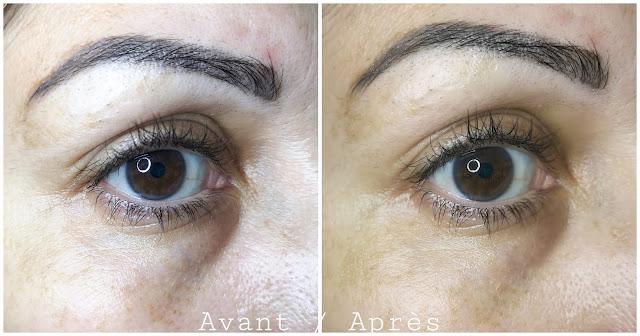 avis-total-eye-lift-clarins