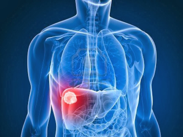 Liver Cancer Stages-healthinews