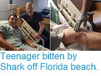 https://sciencythoughts.blogspot.com/2018/05/teenager-bitten-by-shark-off-florida.html