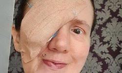 Φρίκη: Της αφαίρεσαν το μάτι επειδή έκανε μια απλή καθημερινή κίνηση στο μπάνιο της