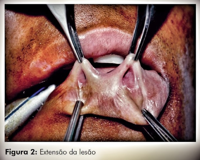 PDF: Fossetas congênitas de lábio inferior: relato de caso