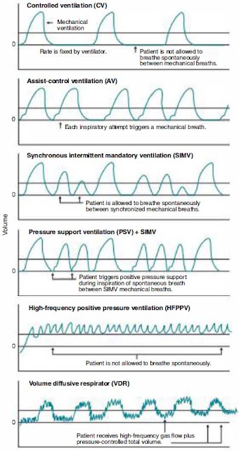 Ventilator Management ECG