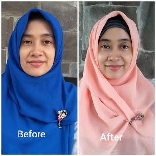 Before after setelah memakai produk DR.Hsieh