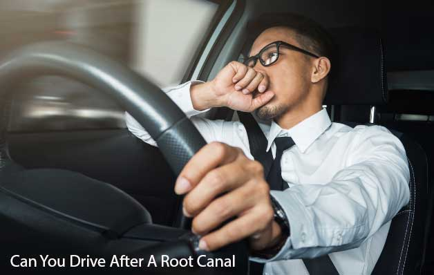 Can You Drive After A Root Canal
