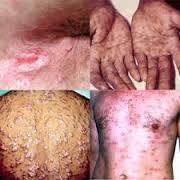 Foto penyakit Sipilis Di Awal Dan Akhir Gejala