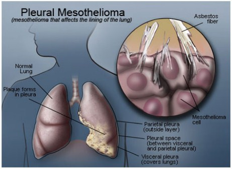 Asbestos Fibers In Lungs : Asbestos fibers from kentucky workplace to the home