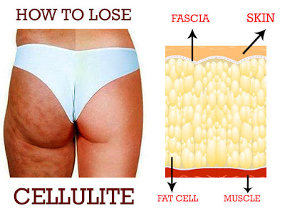 diet to get rid of cellulite