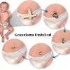 Obat Ini Terbukti Sangat Ampuh Atasi GRANULOMA UMBILICAL (Daging Keluar Dari Pusar Bayi)
