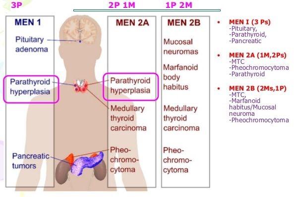 Pathology Mnemonics of Congenital Disorders