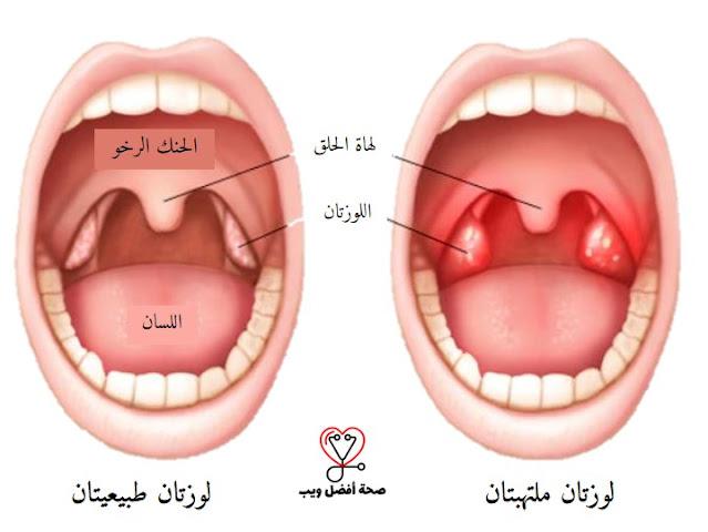 كل ما تحتاج معرفته حول التهاب اللوزتين