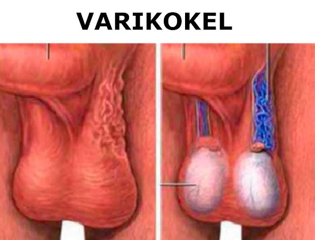 obat varikokel di apotik
