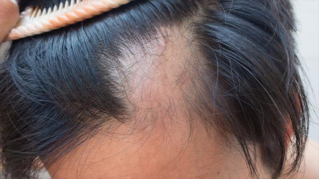 Cause Of Alopecia areata