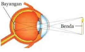 Cara Mengobati Gangguan Penglihatan